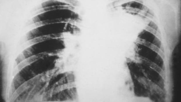 Blastomycosis is a fungal infection of the lungs, producing the same symptoms as pneumonia.