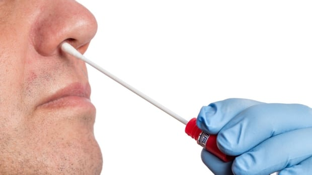 Swabs will determine if a patient is colonized with MRSA.