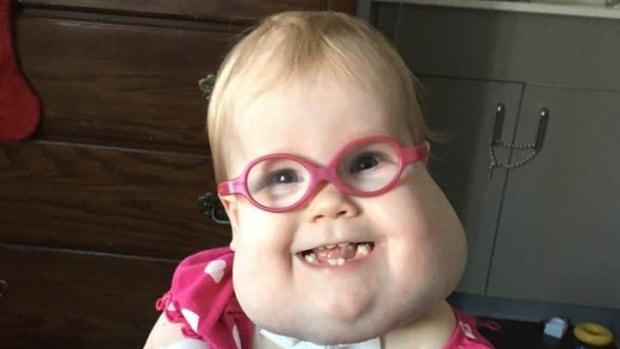After spending the first two-and-a-half years of her life living at the Children's Hospital in Winnipeg, Joy Finnimore finally left the hospital to live with her parents in Portage la Prairie this week.