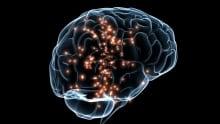 neuronal activity