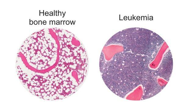 McMaster leukemia study