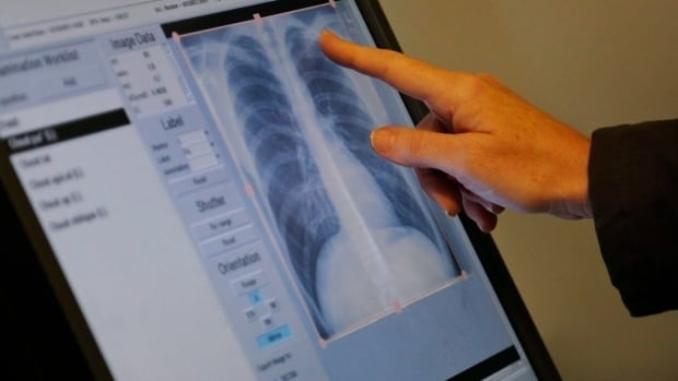 Alberta Health Services sent letters to 323 people after a patient was diagnosed with tuberculosis at an Edmonton continuing care facility.
