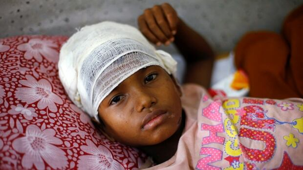 Nur Kalima, 10, a Rohingya refugee girl whose mother said was stabbed by a member of the Myanmar army, is treated at the Cox's Bazar District Sadar Hospital in Bangladesh, on Sept. 13.