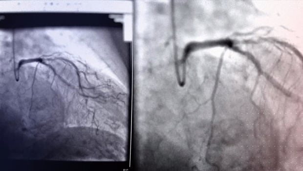 The practice of radiologists analyzing a coronary angiogram like the one seen here after the procedure is considered obsolete by the Montreal Heart Institute, because digital imaging and real-time diagnoses mean cardiologists usually perform an intervention at the same time that the angiogram is done.