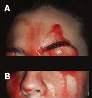 Hematohidrosis patient