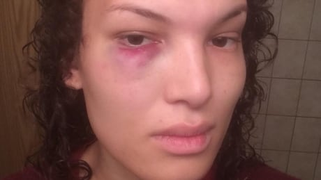 Aisha Walker assaulted on bus