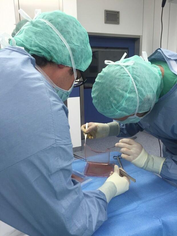Skin transplant procedure