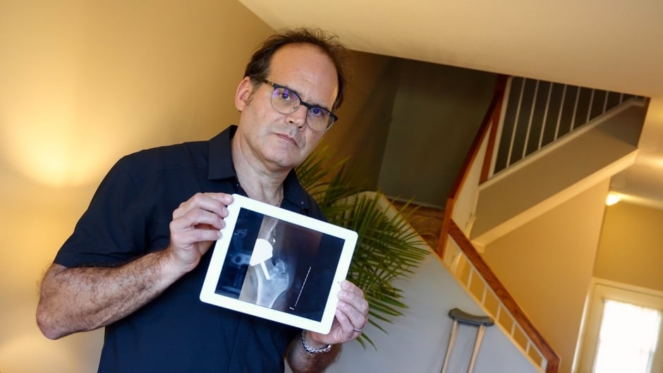Ottawa teacher Tony Lamonica holds up one of his x-rays that show his hip bone healing after an attack by a student. A new survey of teachers shows an alarming rate of physical attacks and harassment against teachers.