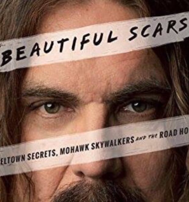 Beautiful Scars cover