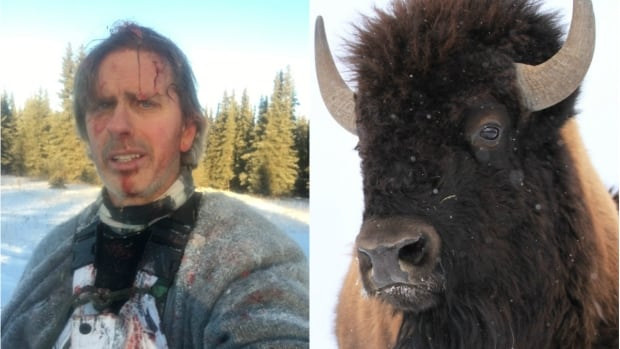 Todd Pilgrim suffered some injuries but survived his terrifying run-in with an enraged bison.