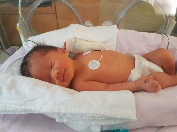 Baby Eiko in Mount Sinai NICU
