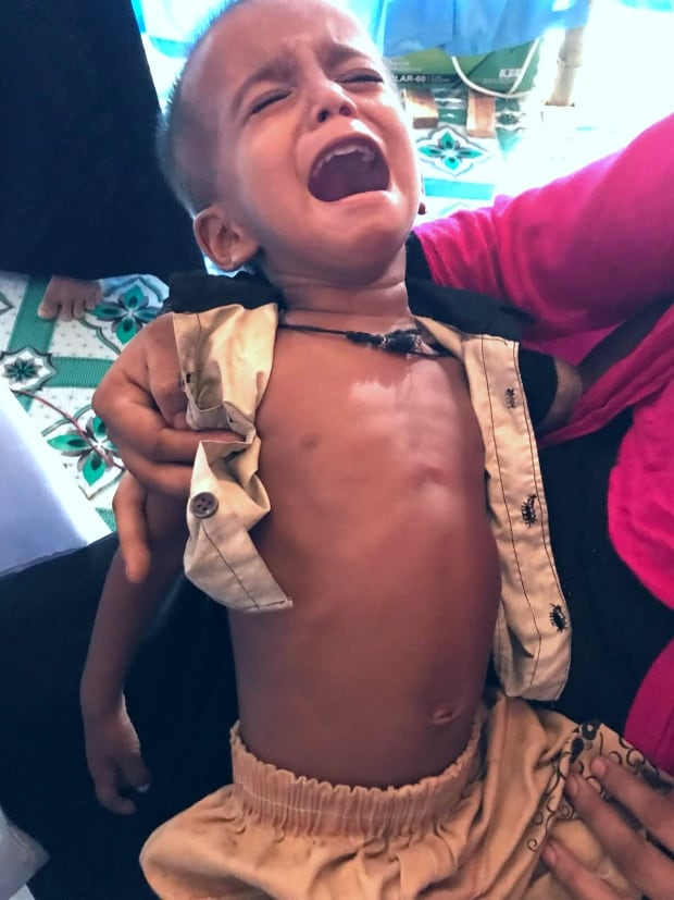 Rohingya refugee camps