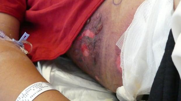 Charlette's frostbite