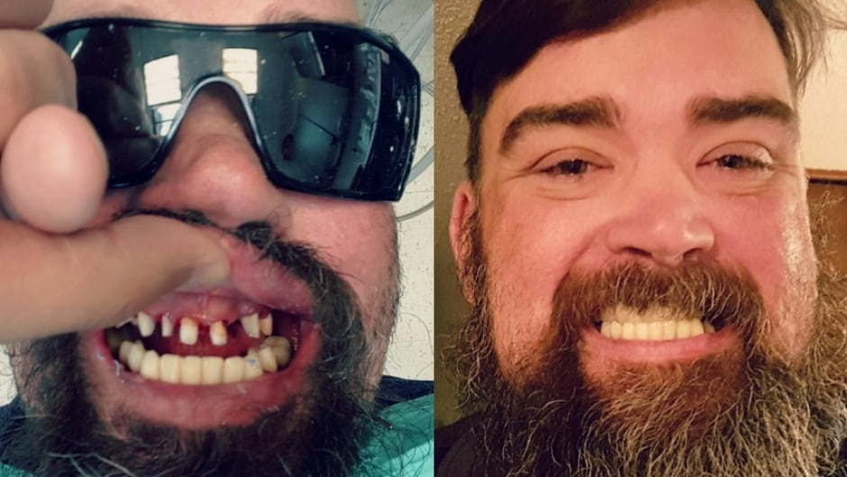 After Dave Stock endured two bouts of cancer, massive doses of chemotherapy and a bad reaction to a bone marrow transplant that ravaged his teeth, his family was left facing a dental bill they couldn't afford.