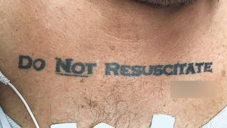 Should doctors heed 'do not resuscitate' tattoos? thumbnail
