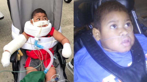 Before and after pictures of Kenrick Bogle, who traveled to Toronto from Jamaica for life-altering surgery at The Hospital for Sick Children.