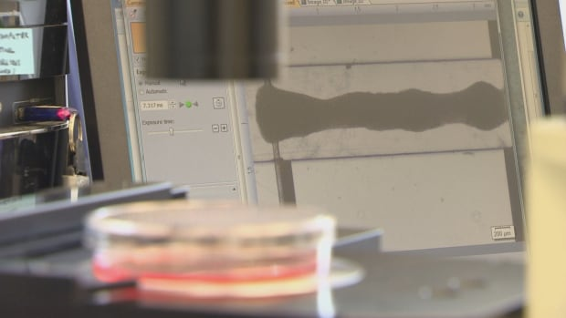 heart tissue in university of toronto lab stem cell