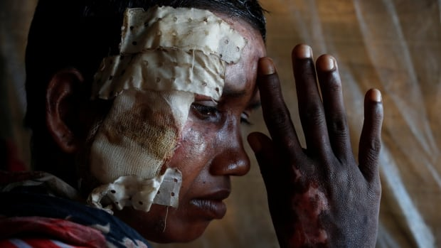 Rohingya refugee Momtaz Begum, 30, poses for a photograph at Balukhali refugee camp in Bangladesh on Oct. 19. Begum spent 20 days at the Doctors Without Borders clinic receiving treatment for burns to her face and body.