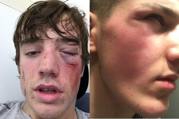 hockey eye injuries