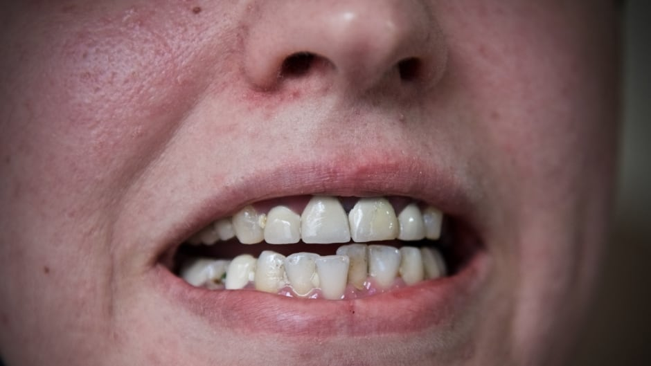 A's teeth cause her so much pain that she can't stand to brush them.  The gums around her front teeth are turning black, and a small crack in her front tooth is giving her a lot of pain.