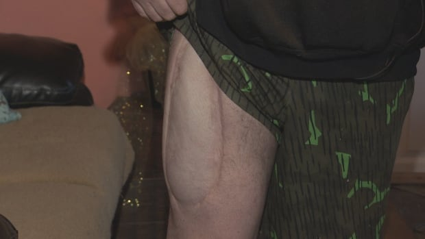 Charlie Lacosta's leg after shooting