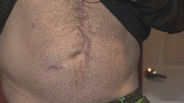 Charlie Lacosta's stomach after shooting