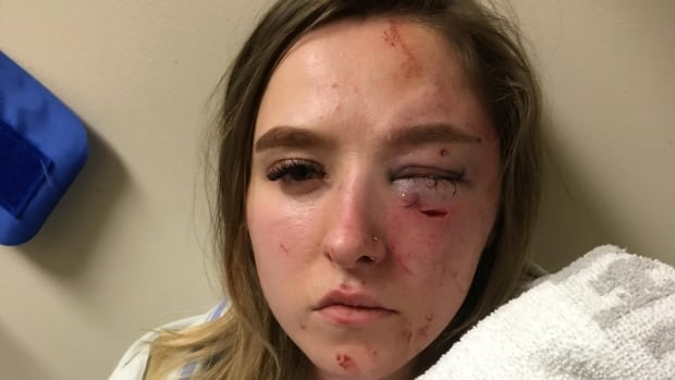 Teens Accused Of Mall Assault Turn Themselves In