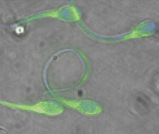 Normal human sperm