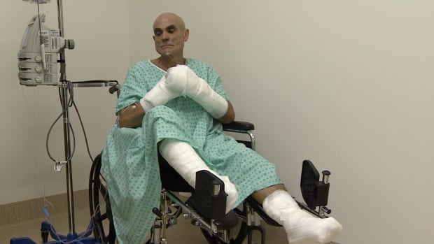 Roberto Zanda, seen here at the Whitehorse hospital, suffered severe frostbite during the Yukon Arctic Ultra.