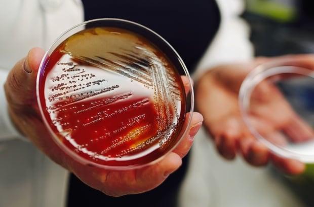 Strep A bacteria in petri dish