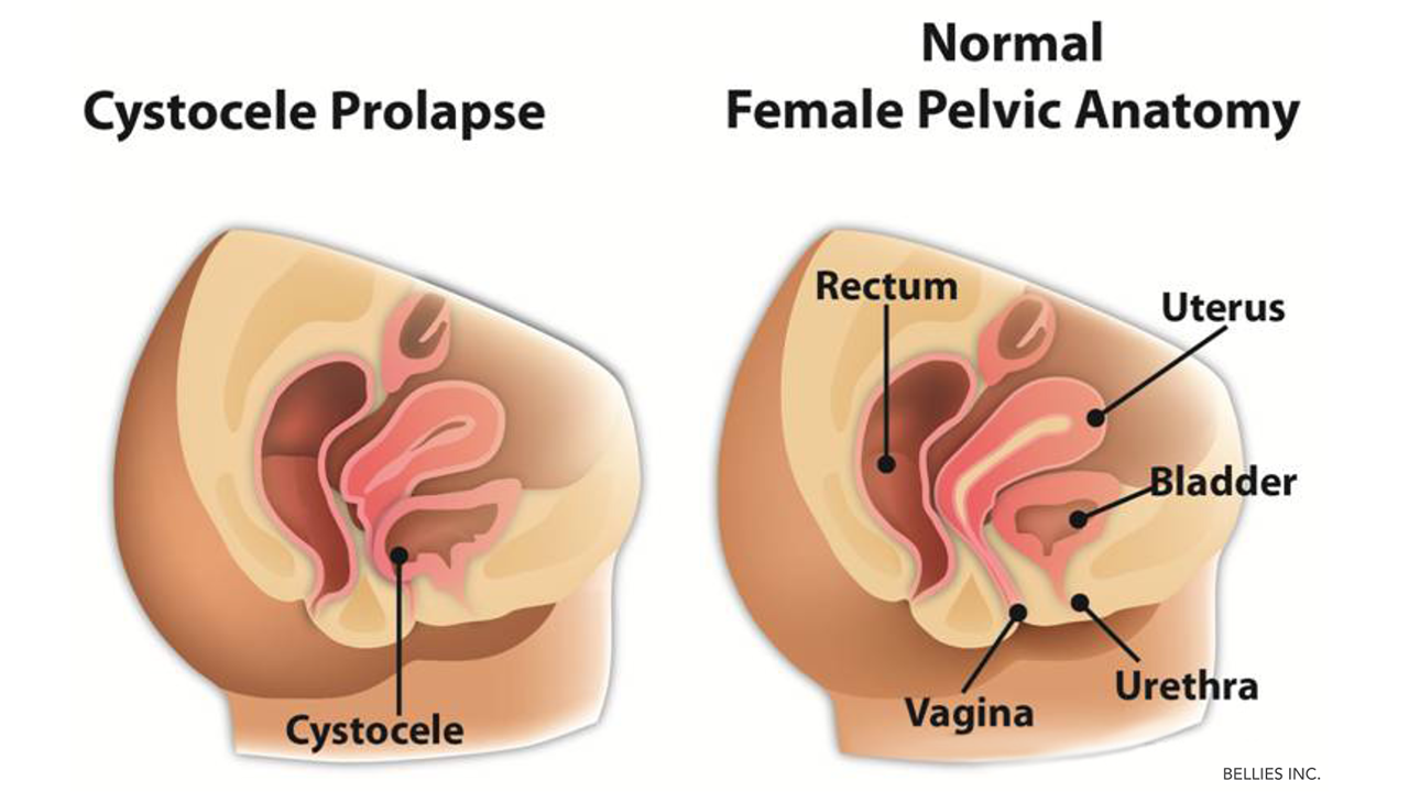 The Pelvic Floor Where Is It When To Worry And How To Work It