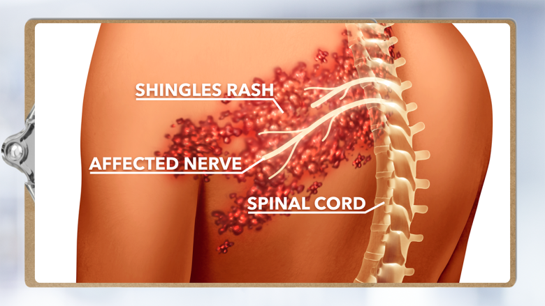 Are Shingles The Ghost Of Chickenpox Past A Doctor S Primer On This Painful Virus Cbc Life
