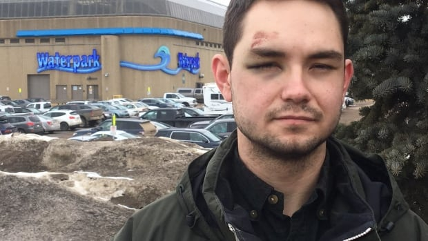 Adrian Cornwell stands outside of West Edmonton Mall's World Waterpark. He says the bruising and scrapes on his right eye were suffered when a security guard tackled him to the floor and handcuffed him at a Friday party in the waterpark.