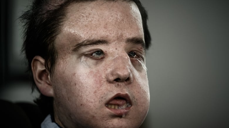 Very facial first transplant world