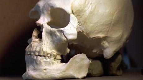 Ancient Skeleton