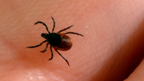 Ottawa man alleges doctors failed to diagnose Lyme disease