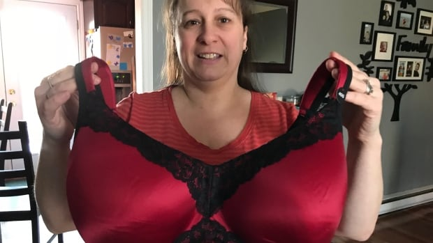 Too Big For Breast Reduction Why This Woman Was Refused -2464