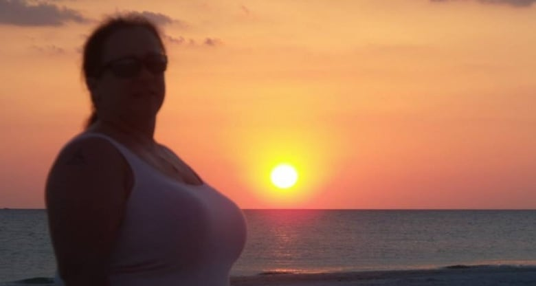 Too big for breast reduction? Why this woman was refused ...