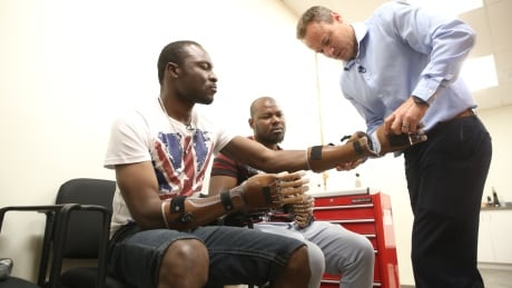 'God has answered our prayers': Prosthetic hands give independence to newcomers who lost fingers to frostbite