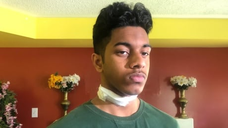'I was lucky': Teen attacked in unprovoked daytime stabbing released from hospital