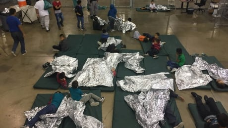 Kids detained at U.S. border at risk for long-term health problems