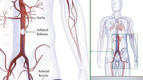 Tiny balloon catheter used by military stops bleeding in trauma patients