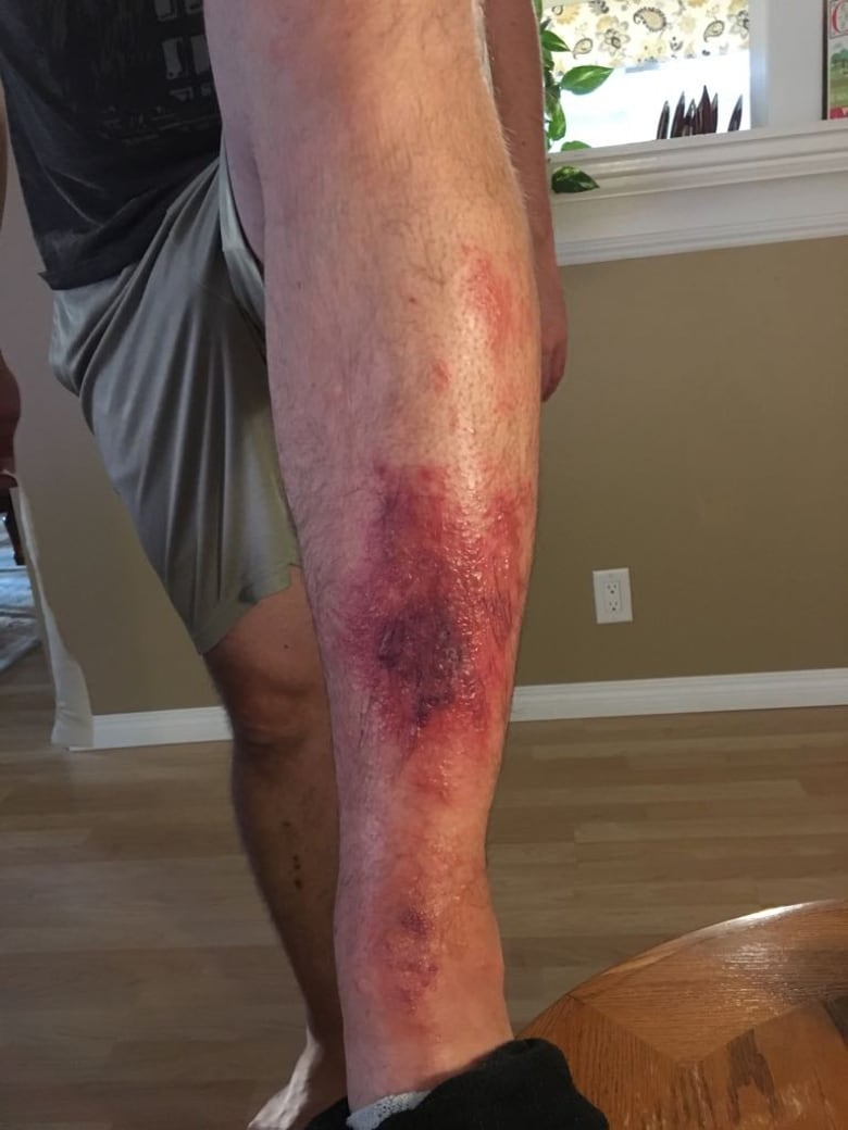 Regina man left with 'huge blisters' after run-in with wild parsnip