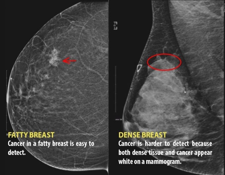 Her dense breast tissue hid cancer for years. Now she's ...