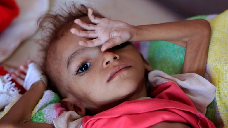 13M people at risk of starving to death in Yemen, UN warns