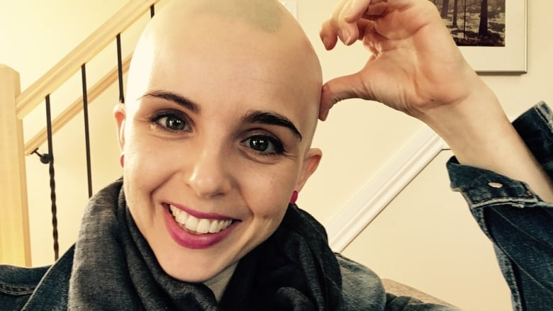 'Just bald' Ottawa woman comes clean about life with alopecia