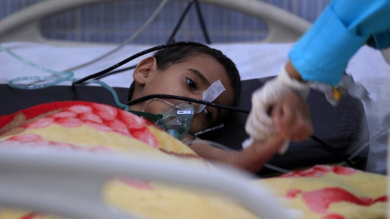 A Yemeni Child Suffering From A Diphtheria Infection Receives Treatment At A Hospital In The Capital Sanaa Earlier This Week Yemens Brutal Conflict Has