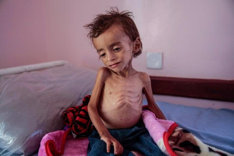 Saudi-led coalition pounds rebel positions in Yemeni port city aptopix yemen displaced into hunger photo essay