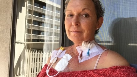 Rare cancer linked to breast implants, but Health Canada says no safety advisory is needed thumbnail