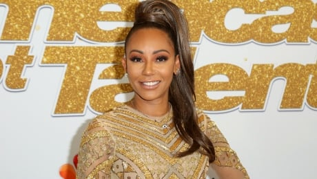 Spice Girl Mel B has surgery to save her hand